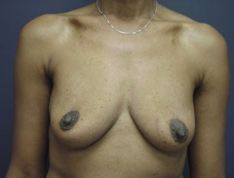 Breast Augmentation  before 465538