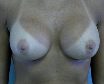 Breast augmentation after 409968