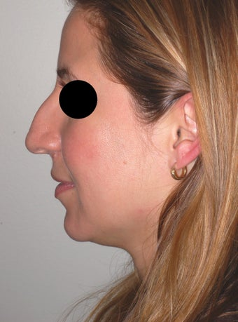 Finesse Rhinoplasty before 613961