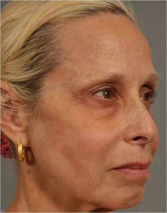 60 Year Old Female treated for under eye puffiness, sagging cheeks and frown lines non surgically 640083