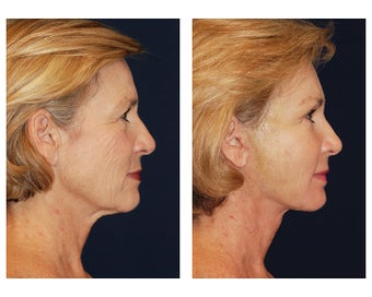 Neck Lift after 347519