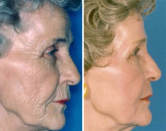 Chemical Peel before 652148