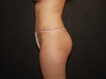 Abdominoplasty after 336743