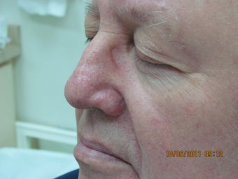 Laser vein treatment of veins on the nose after 399032