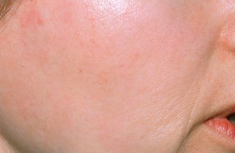 Chemical peel after 374258