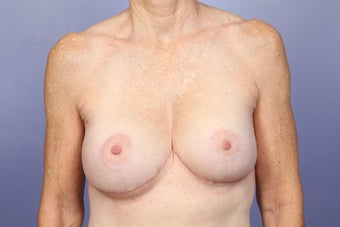 Breast Lift / Breast Augmentation  after 291088