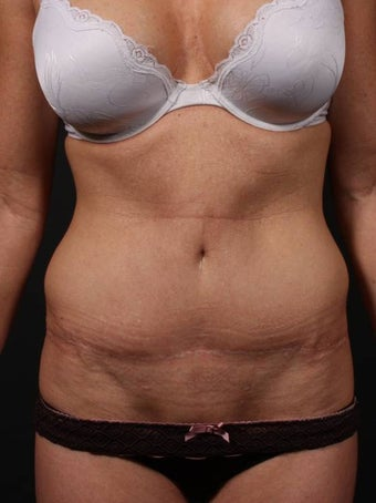 Abdominoplasty before 398183