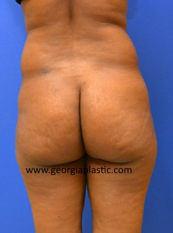 Brazilian Buttock Lift before 440724