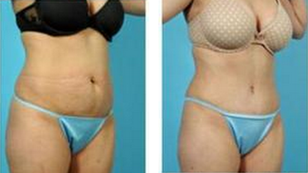 Tummy Tuck (Abdominoplasty) after 324843