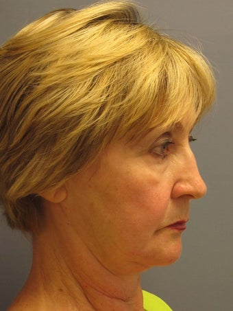 Neck Lift, Platysmaplasty 634755