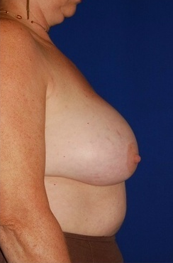 Heavy breast treatment, implant removal and breast lift before 158172