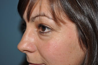 Lower Blepharoplasty before 468086