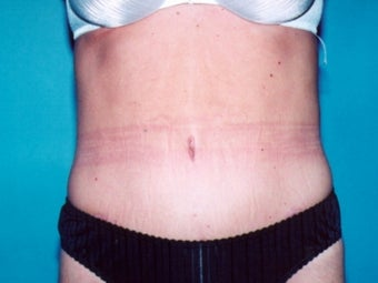 Tummy tuck after massive weight loss after 91226