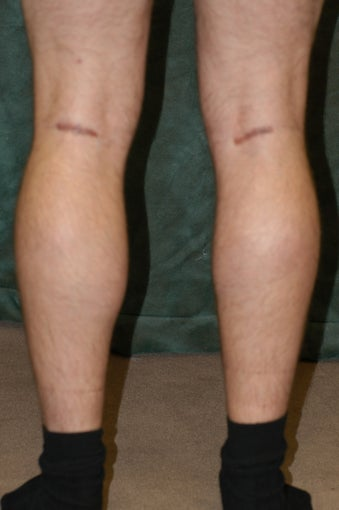 Men's Calf Augmentation  after 519062