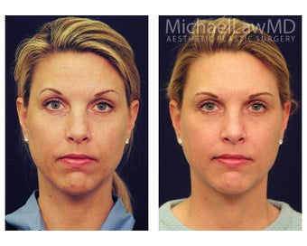 Chin Liposuction before 395819