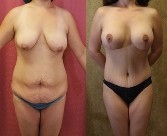 Mommy Makeover- tummy tuck and breast augmentation 583644