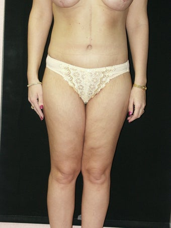 Body Lift  and Inner Thigh Lift after 379793