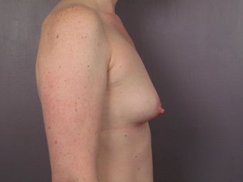 Breast Lift / Breast Augmentation  before 291068