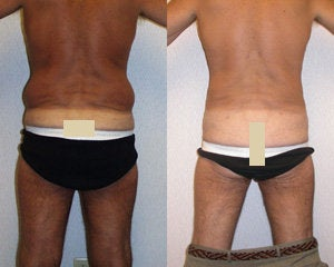 Liposuction after 119361