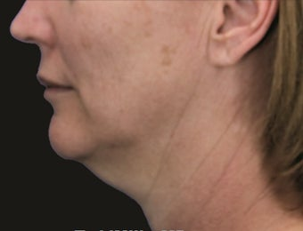 Neck Lift and Laser-Assised Lipocontouring before 406733