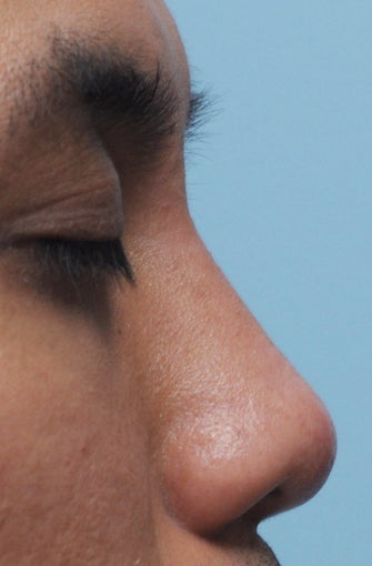 Non Surgical Rhinoplasty after 307848