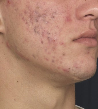 Acne Laser Treatment before 123325