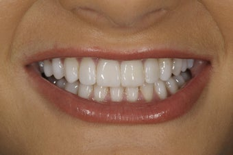 Resin bonding smile makeover on a teenager. after 326342