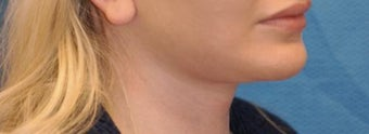 Lip Augmentation after 399264