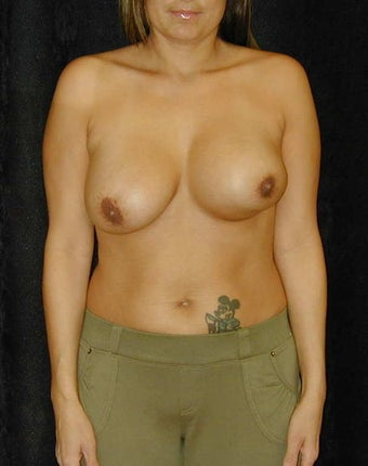 Breast Implant Revision  before 98371