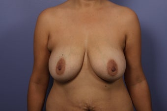 Breast Augmentation before 467211