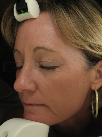 Fraxel re:pair CO laser resurfacing for fine lines and pigmentation after 121890