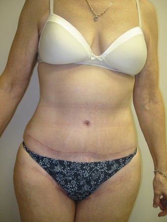 Tummy Tuck after 275985