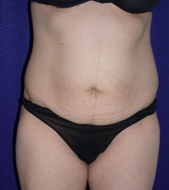 Tummy Tuck (abdominoplasty) before 208471