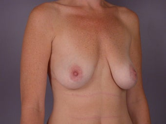 Breast Lift / Breast Augmentation before 291129