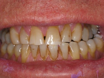 Full Mouth Makeover before 364702