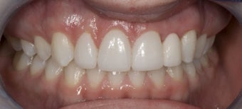 Porcelain Bridge and Veneers after 374741