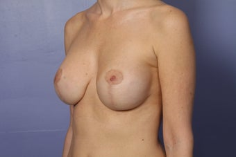 46 yr old with droopy and deflated breasts after 630801