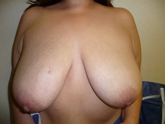 Breast reduction using the Ultimate Lift technique before 360387