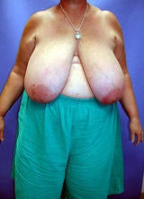 Breast Reduction Surgery before 122992