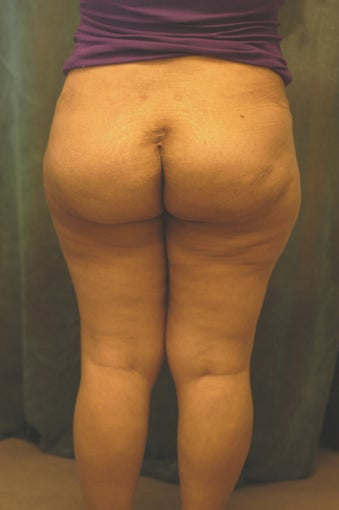 Women's Buttocks Augmentation  after 518121