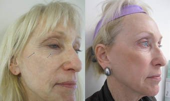 Fractional CO2 Laser Resurfacing after 387843