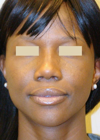 African American Rhinoplasty after 104225