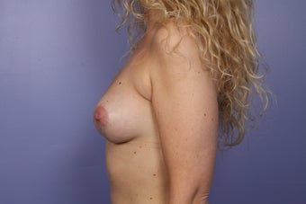 Breast Revision Surgery after 306995