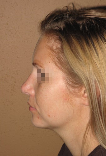 Chin enlargment and rhinoplasty combo after 270706