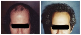 hair transplant before 369163