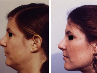 Facial liposuctioning after 139145