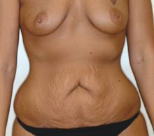 Mommy Makeover- Abdominoplasty and Breast Augmentation before 253102