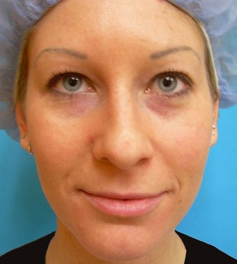 Under-Eye Filler Treatment after 567450