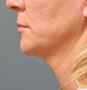 Ulthera Laser Skin Tightening after 346280