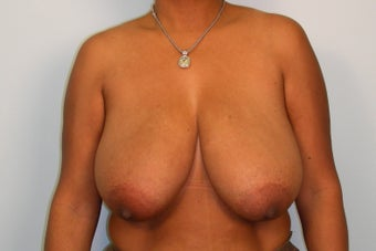 Breast Reduction before 224103